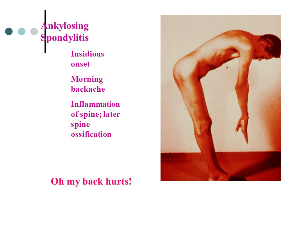 Ankylosing Spondylitis Insidious onset Morning backache Inflammation of spine; later spine ossification Oh my back hurts!
