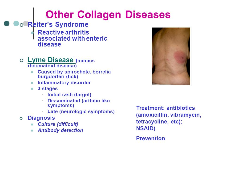 Other Collagen Diseases Reiter's Syndrome Reactive arthritis associated with enteric disease Lyme Disease Lyme Disease (mimics rheumatoid disease) Caused by spirochete, borrelia burgdorferi (tick) Inflammatory disorder 3 stages Initial rash (target) Disseminated (arthitic like symptoms) Late (neurologic symptoms) Diagnosis Culture (difficult) Antibody detection Treatment: antibiotics (amoxicillin, vibramycin, tetracycline, etc); NSAID) Prevention