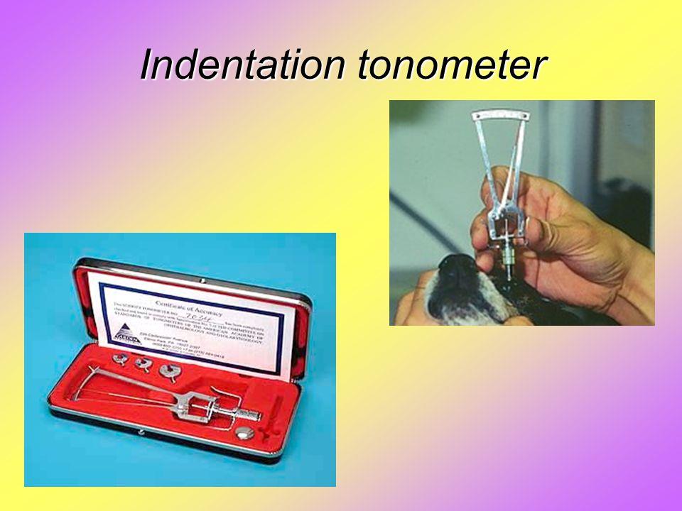 Indentation tonometer