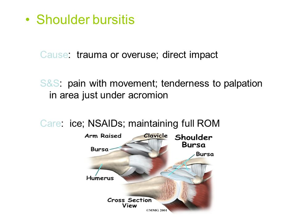 Shoulder bursitis Cause: trauma or overuse; direct impact S&S: pain with movement; tenderness to palpation in area just under acromion Care: ice; NSAI