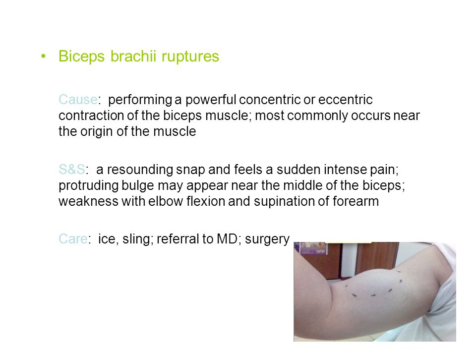 Biceps brachii ruptures Cause: performing a powerful concentric or eccentric contraction of the biceps muscle; most commonly occurs near the origin of