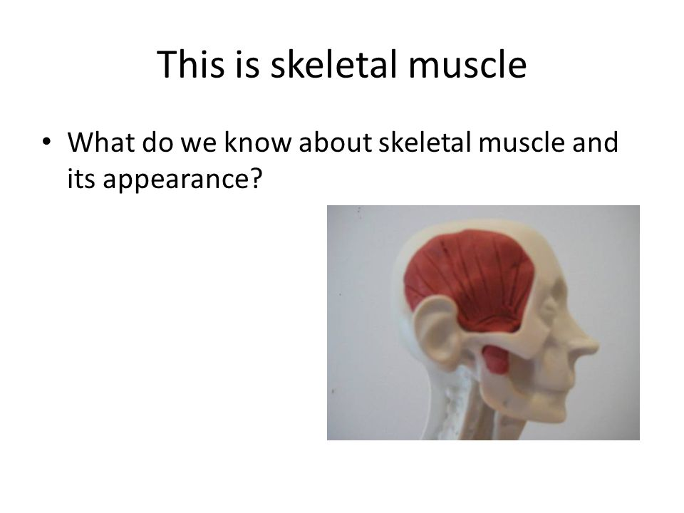 This is skeletal muscle What do we know about skeletal muscle and its appearance?