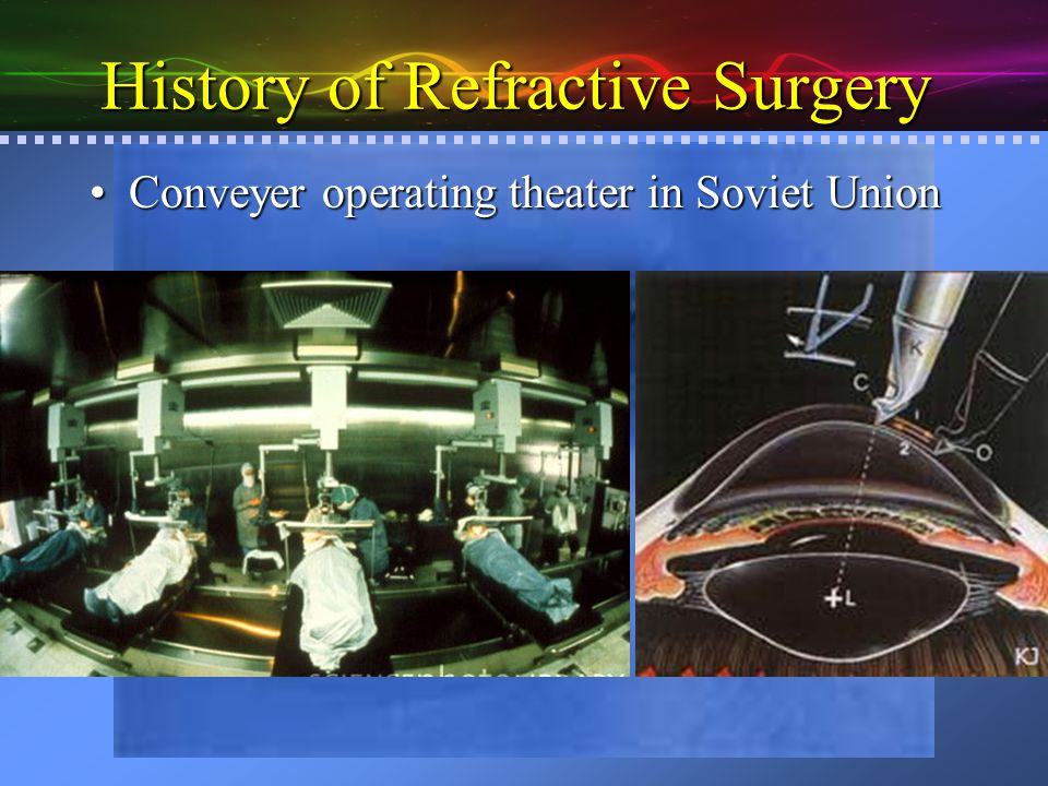 History of Refractive Surgery Jose BarraquerJose Barraquer –1916-1998 –The father of modern refractive surgery Several inventionsSeveral inventions –Born in Spain, but moved to Bogotá, Columbia in 1965