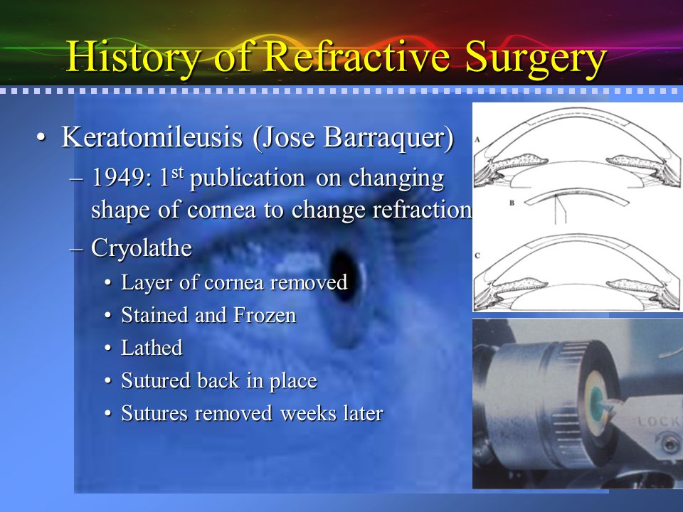 History of Refractive Surgery Microkeratome: (Barraquer)Microkeratome: (Barraquer) –Allowed for in situ correction ALK: Automated Lameller Keratoplasty (Luis Ruis)ALK: Automated Lameller Keratoplasty (Luis Ruis) –Microkeratome 1 st makes an incomplete flap –Microkeratome readjusted for the power cut.