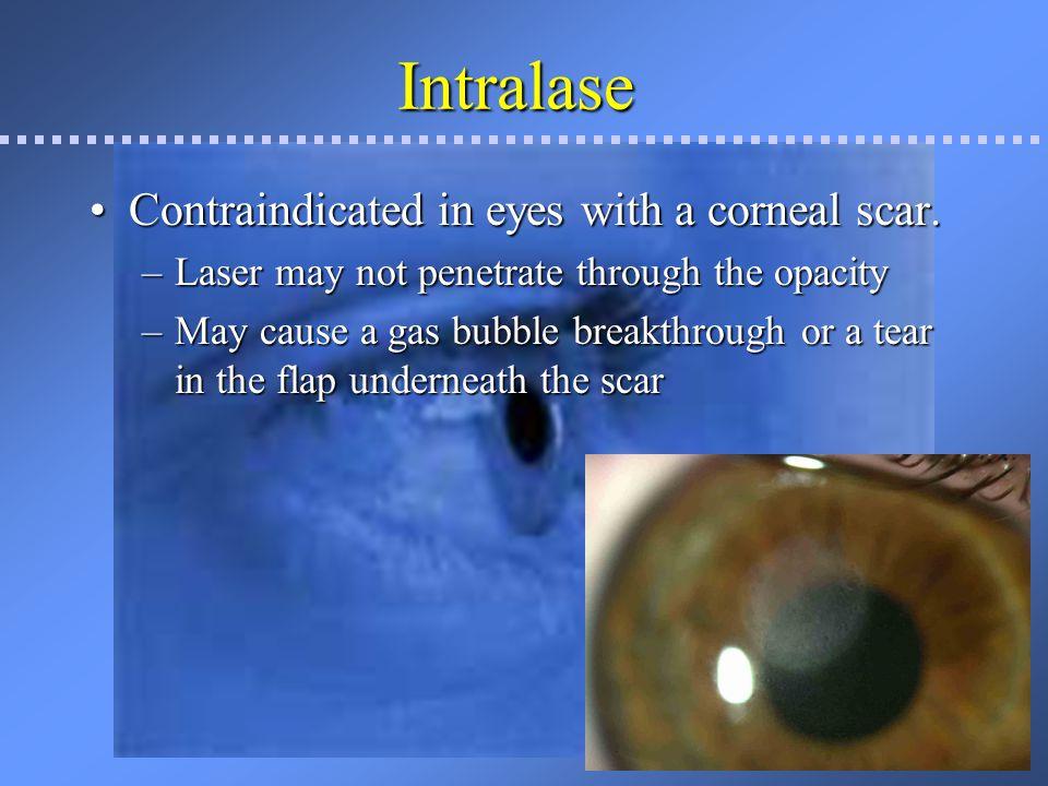 Corneal opacities after LASIK