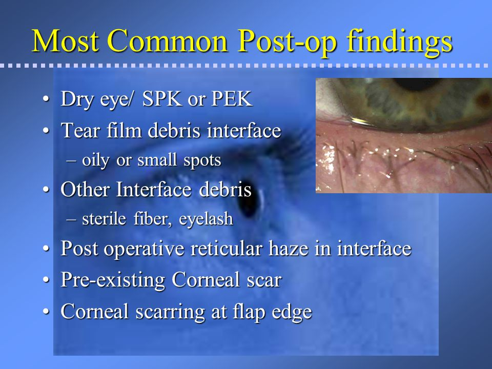 Less Common findings Diffuse Lamellar KeratitisDiffuse Lamellar Keratitis – Sands of the Sahara Epithelial ingrowthEpithelial ingrowth Infectious infiltrateInfectious infiltrate Sterile infiltrateSterile infiltrate Infectious Ulcer or infiltrateInfectious Ulcer or infiltrate Fungal infection (rare)Fungal infection (rare) Peripheral infiltrate, not in flap interface – can be due to corneal neovascularizationPeripheral infiltrate, not in flap interface – can be due to corneal neovascularization Herpetic lesionHerpetic lesion –Surgical stress may re-activate a dormant virus
