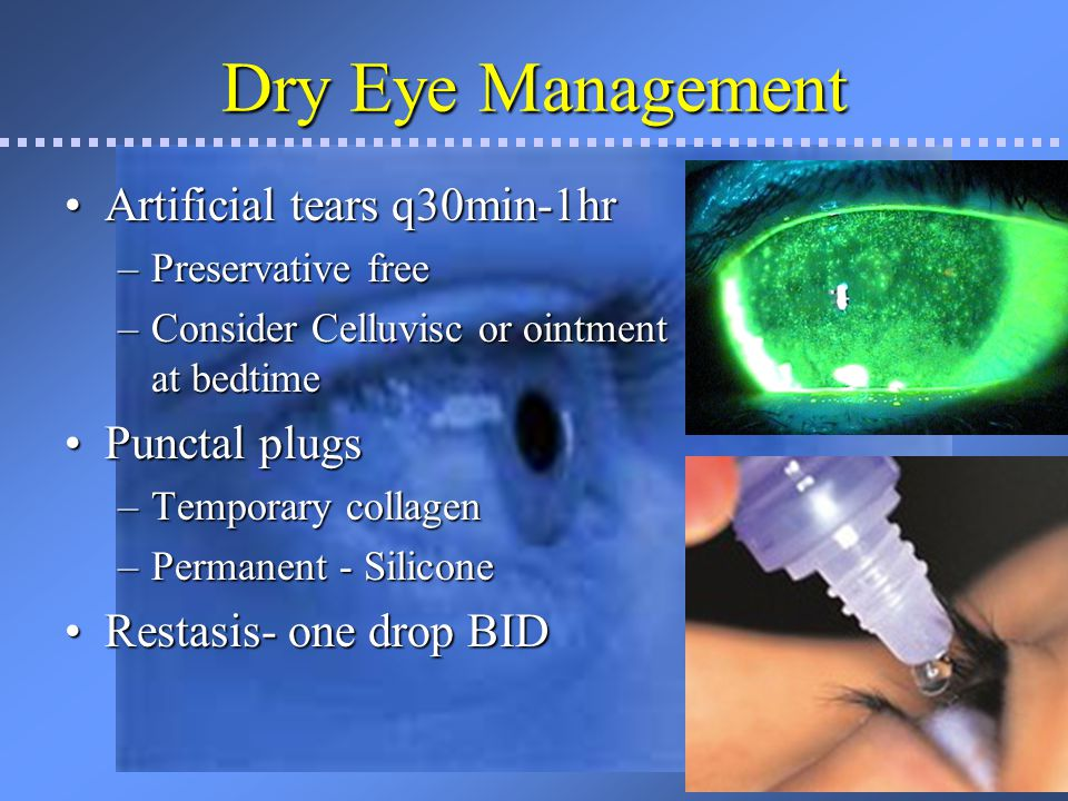 Dry Eye Management Doxycycline (oral)Doxycycline (oral) –Anti-inflammatory effect as well as improve proper meibomian gland function.