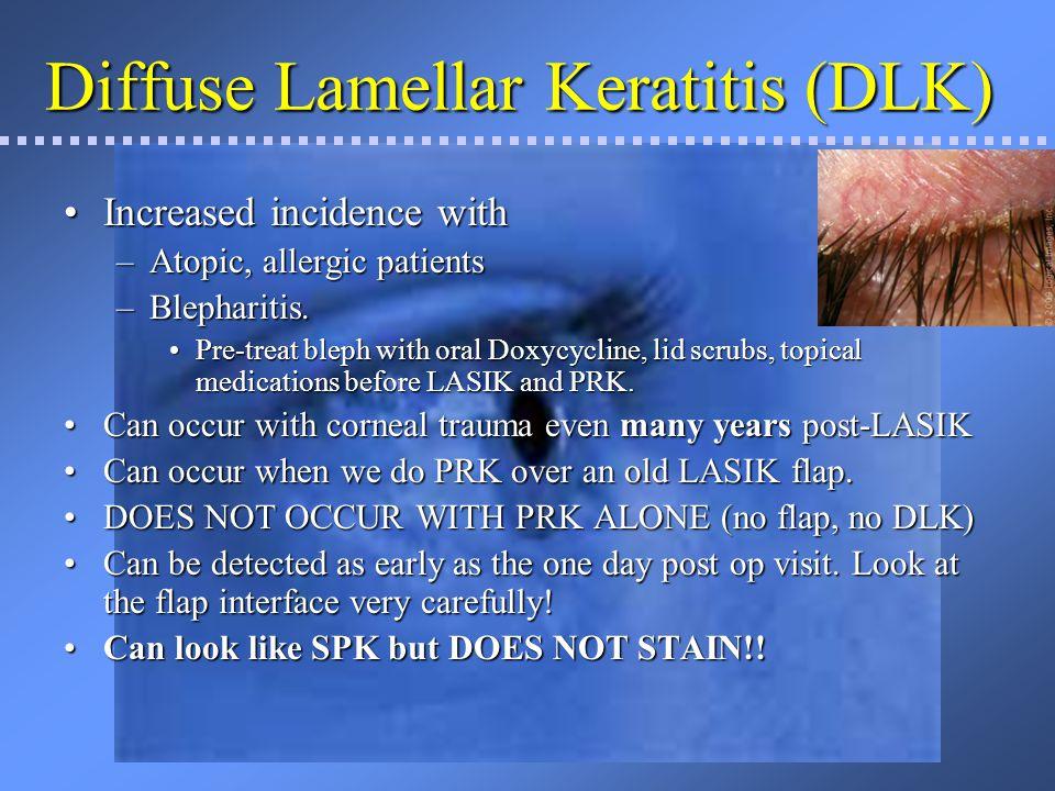 Diffuse Lamellar Keratitis (DLK)