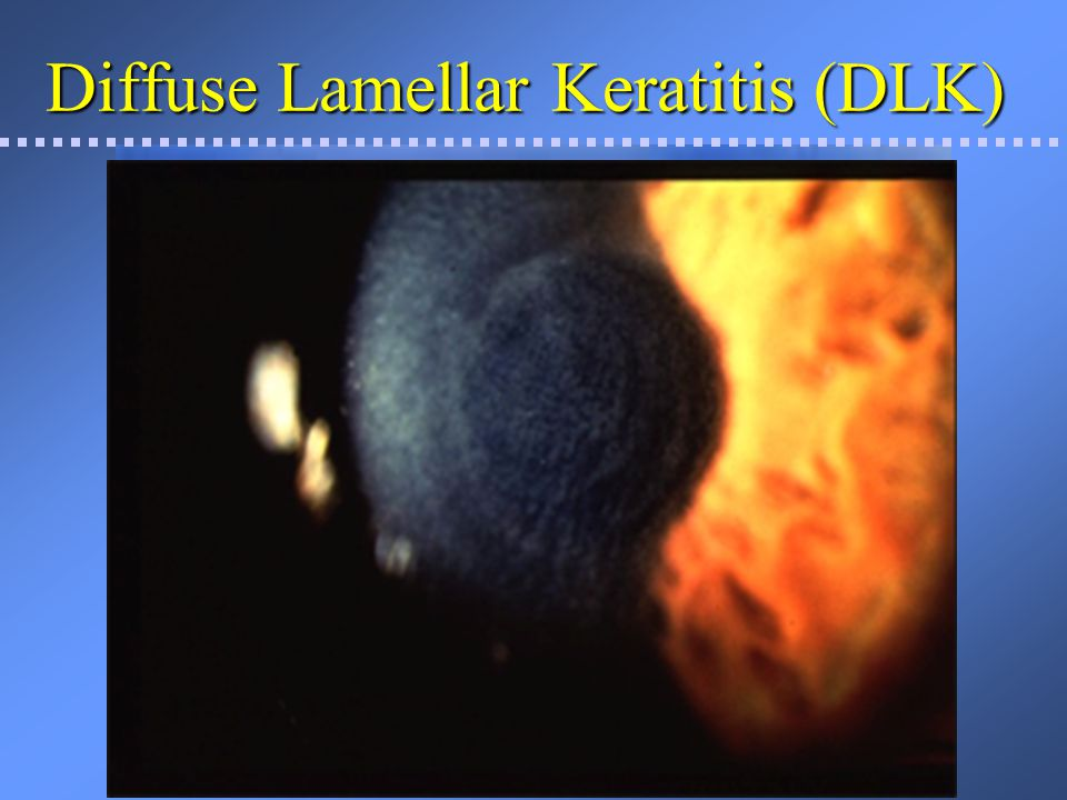 Diffuse Lamellar Keratitis (DLK) and Intralase flap technology Incidence of significant DLKIncidence of significant DLK –0.1% of LASIK patients with the microkeratome –Slightly more risk with early model of Intralase