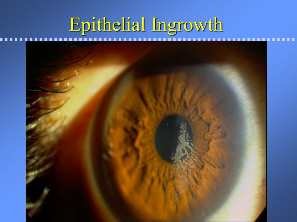 Epi-ingrowth with MK Epi cells in interface
