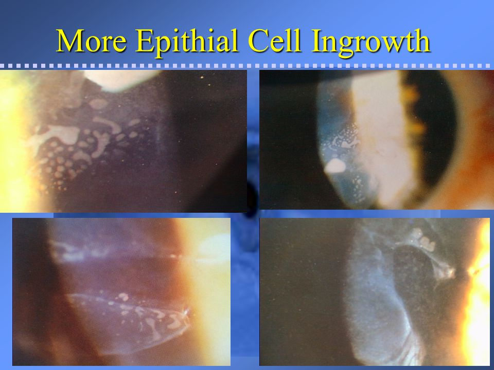 Management of Epithelial Ingrowth If the cells are progressive, abundant, central or affecting visionIf the cells are progressive, abundant, central or affecting vision –Send back to BHREI for lift and scrape a.s.a.p.
