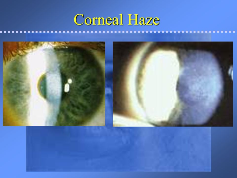 Additional complications Flap stria vs folds Can be obvious or very fine (micro-striae) If off visual axis, rarely effects vision Central micro-striae can effects visual acuity, but often does not.