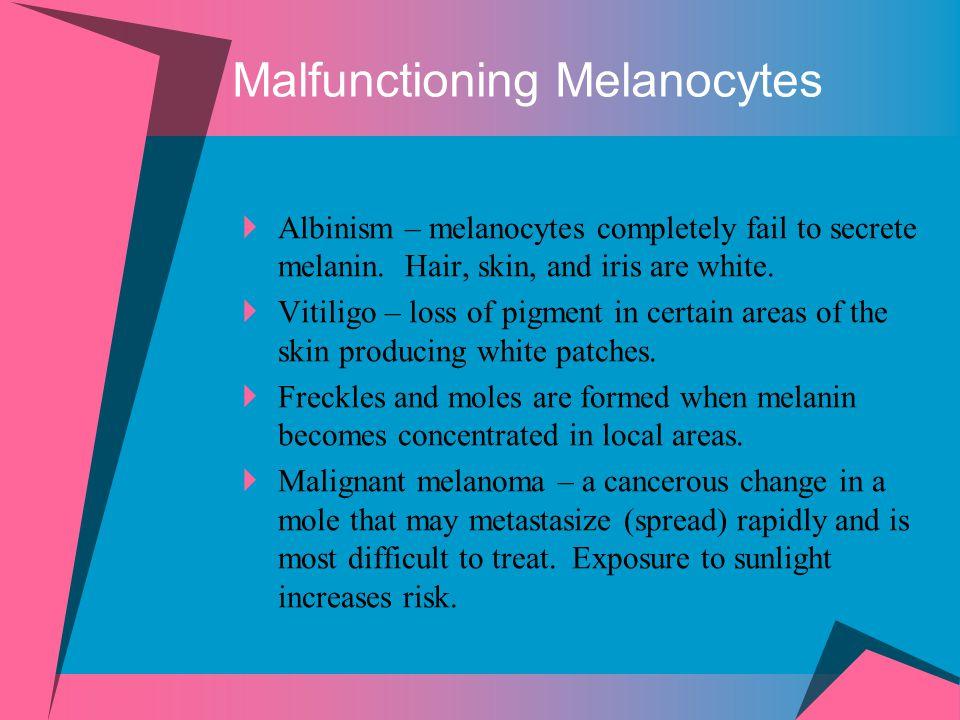 Malfunctioning Melanocytes  Albinism – melanocytes completely fail to secrete melanin. Hair, skin, and iris are white.  Vitiligo – loss of pigment i