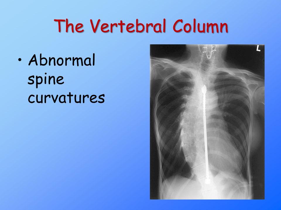 The Vertebral Column Abnormal spine curvatures