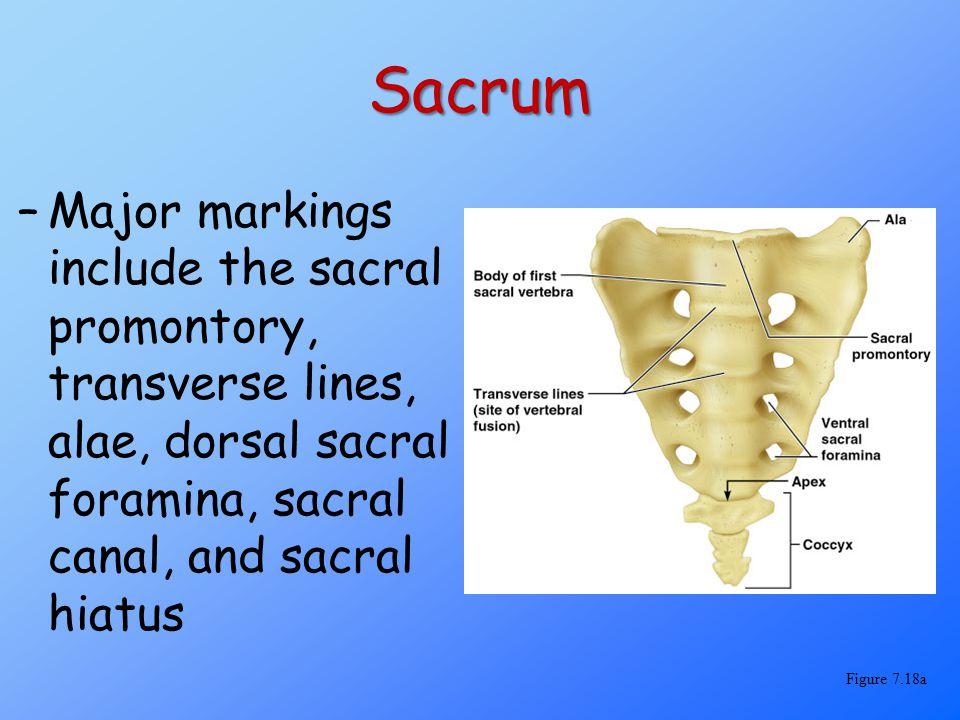 Sacrum –Major markings include the sacral promontory, transverse lines, alae, dorsal sacral foramina, sacral canal, and sacral hiatus Figure 7.18a