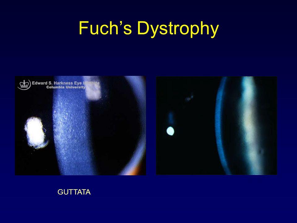 Fuch's Dystrophy GUTTATA