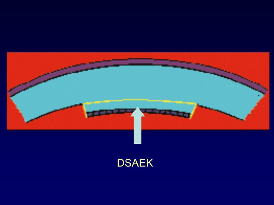 DSAEK