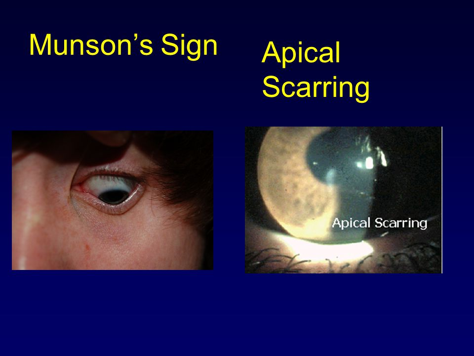 Munson's Sign Apical Scarring