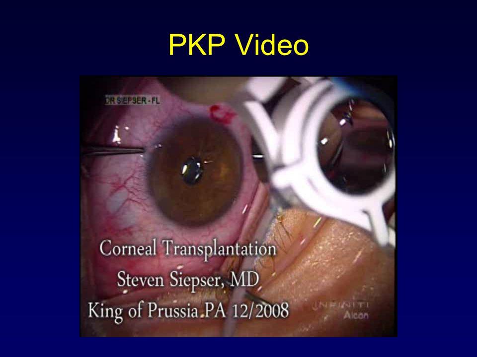 PKP Video