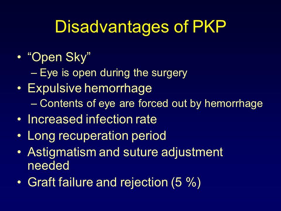 Deep Stromal Automated Lamellar Keratoplasty (DSALK) AKA Superficial Lamellar Keratoplasty Corneal overlay