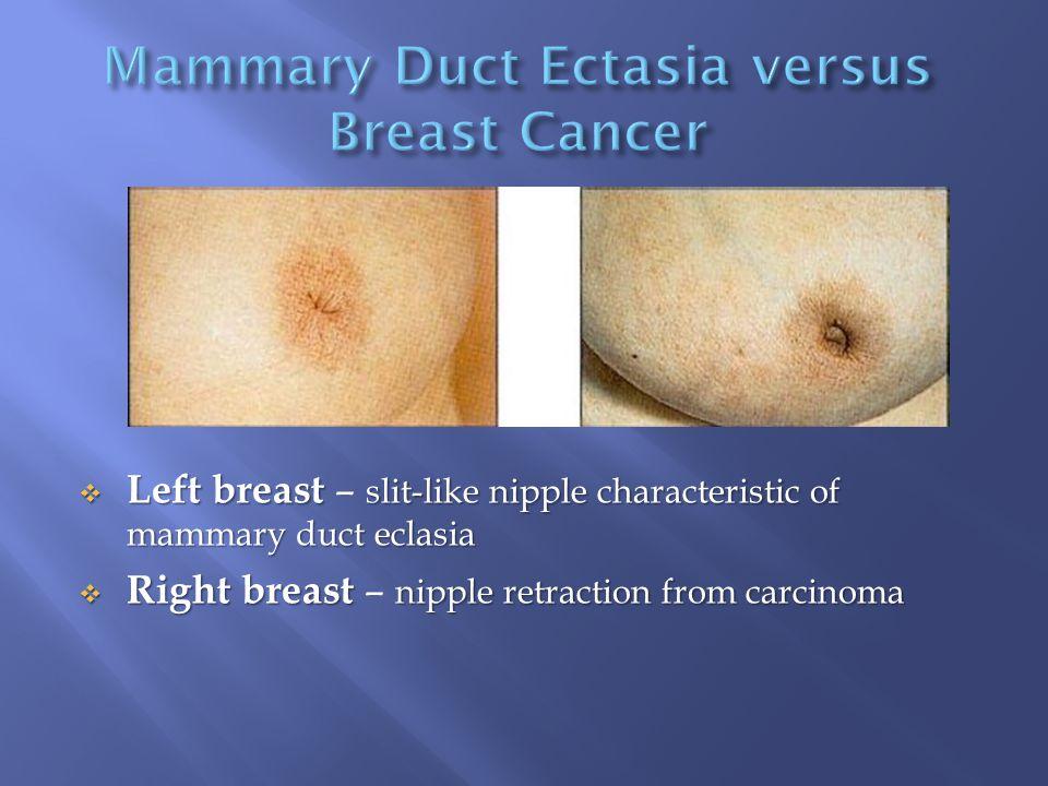  Left breast slit-like nipple characteristic of mammary duct eclasia  Left breast – slit-like nipple characteristic of mammary duct eclasia  Right breast nipple retraction from carcinoma  Right breast – nipple retraction from carcinoma