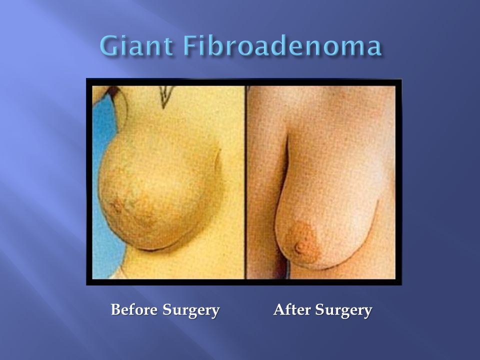 Before Surgery After Surgery