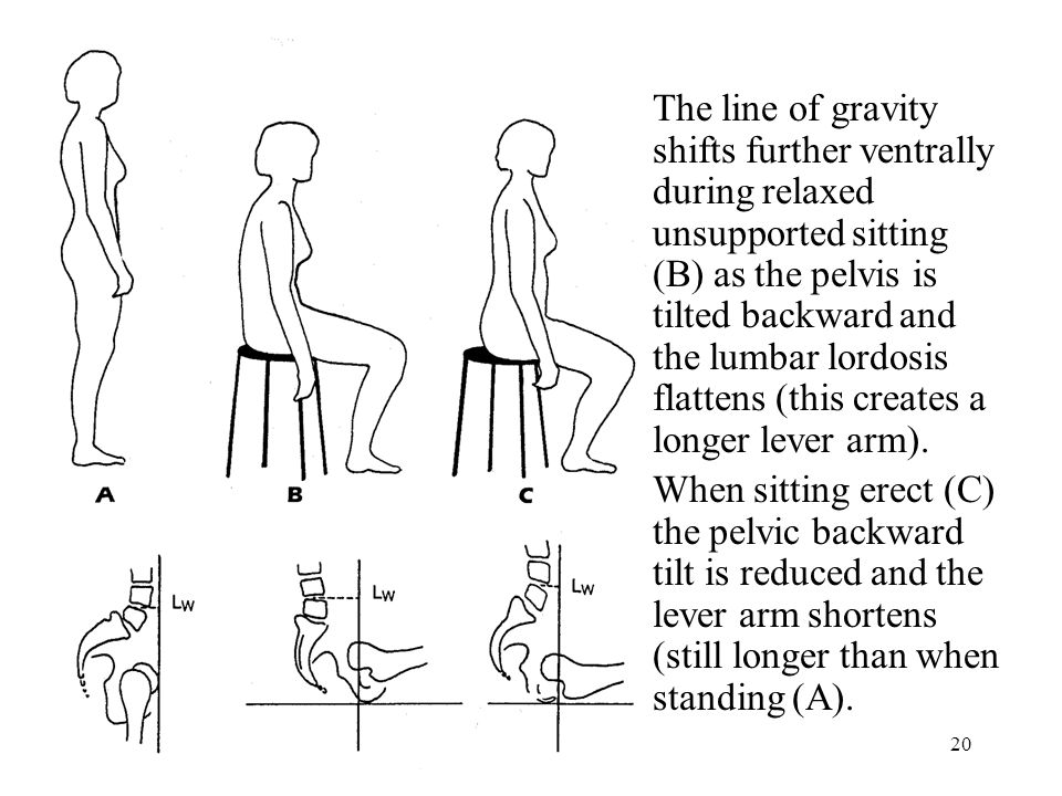 20 The line of gravity shifts further ventrally during relaxed unsupported sitting (B) as the pelvis is tilted backward and the lumbar lordosis flattens (this creates a longer lever arm).