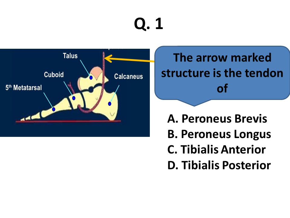 The arrow marked structure is the tendon of Q.1 A.