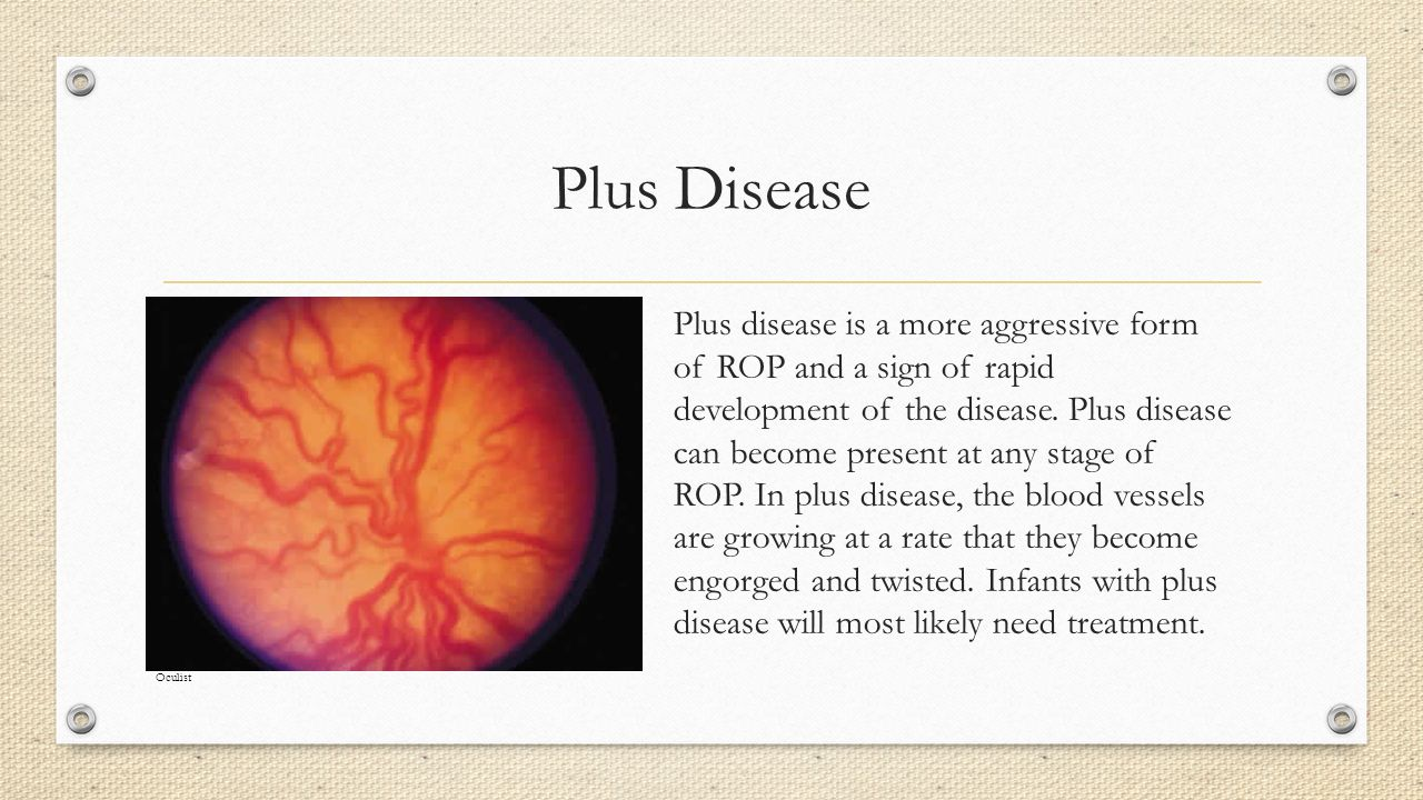 Plus Disease Plus disease is a more aggressive form of ROP and a sign of rapid development of the disease.