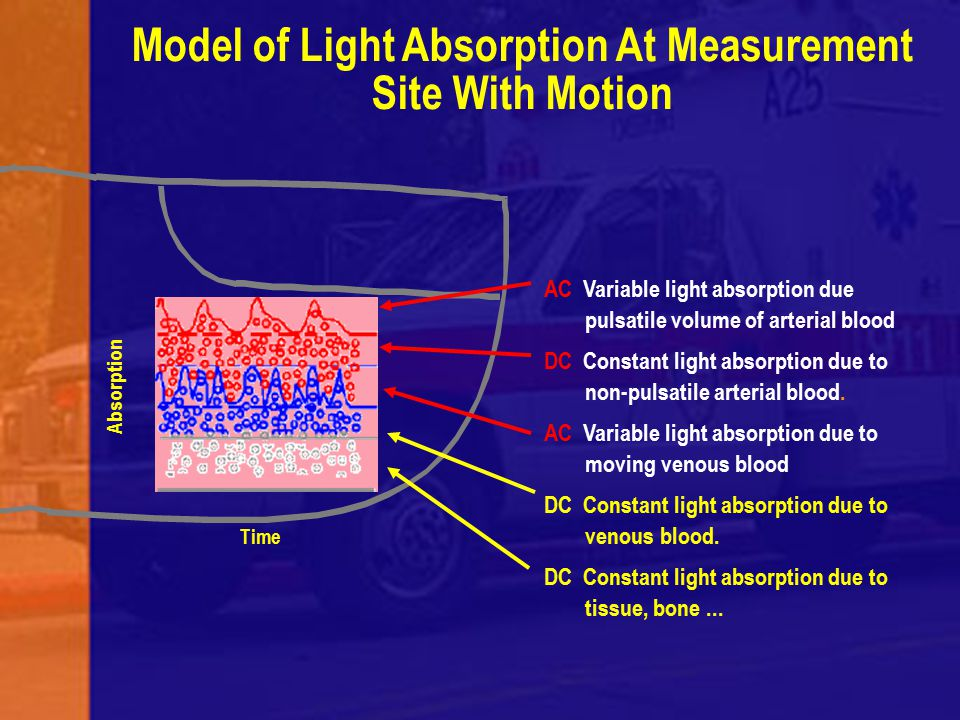 Model of Light Absorption At Measurement Site With Motion AC Variable light absorption due pulsatile volume of arterial blood DC Constant light absorp