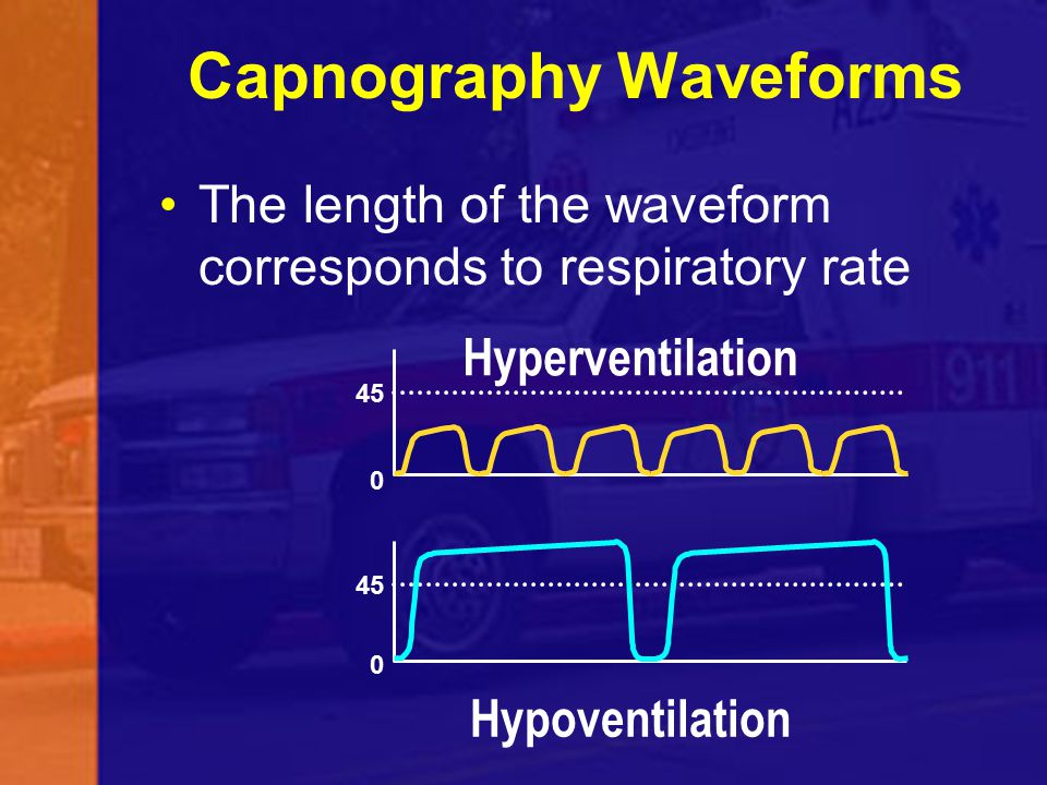 Capnography Waveforms 45 0 0 Hypoventilation Hyperventilation The length of the waveform corresponds to respiratory rate