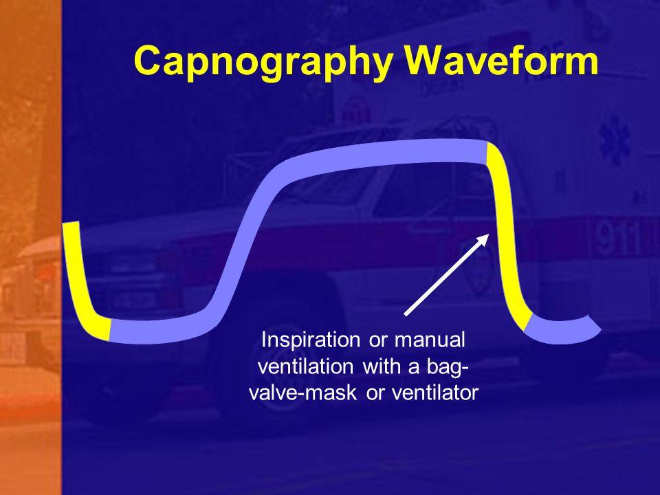 Capnography Waveform Inspiration or manual ventilation with a bag- valve-mask or ventilator