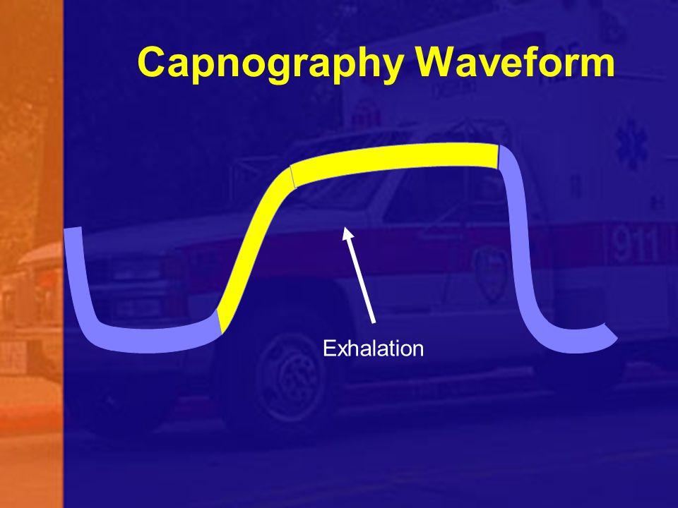 Capnography Waveform Exhalation