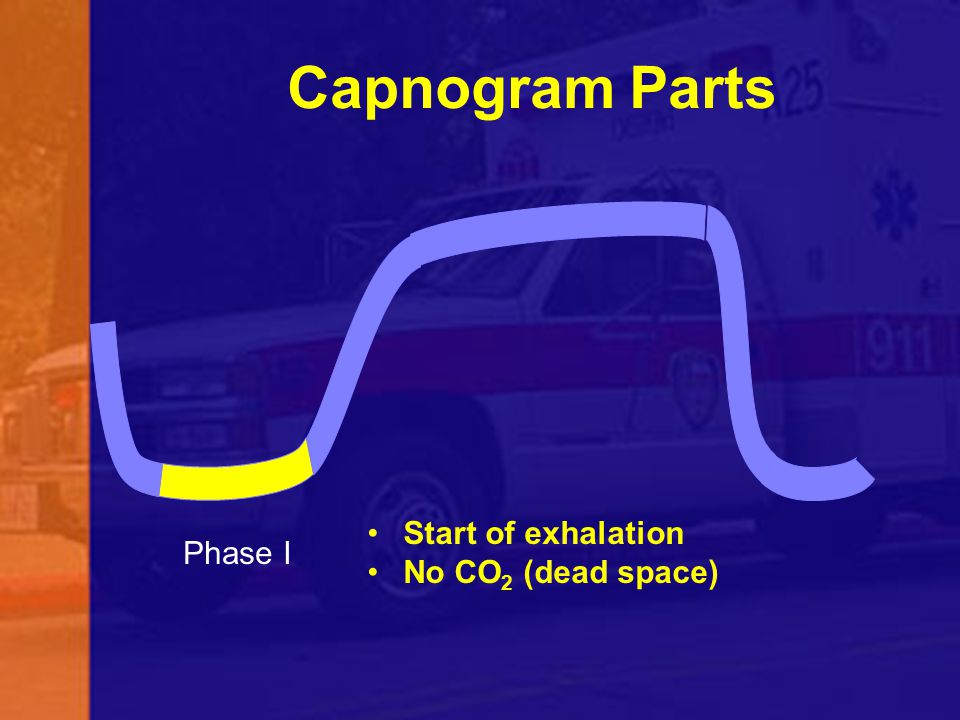 Capnogram Parts Phase I Start of exhalation No CO 2 (dead space)