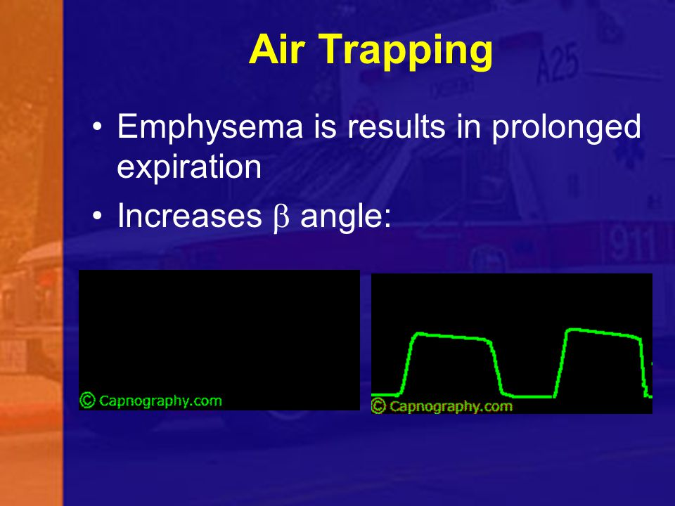 Air Trapping Emphysema is results in prolonged expiration Increases  angle: