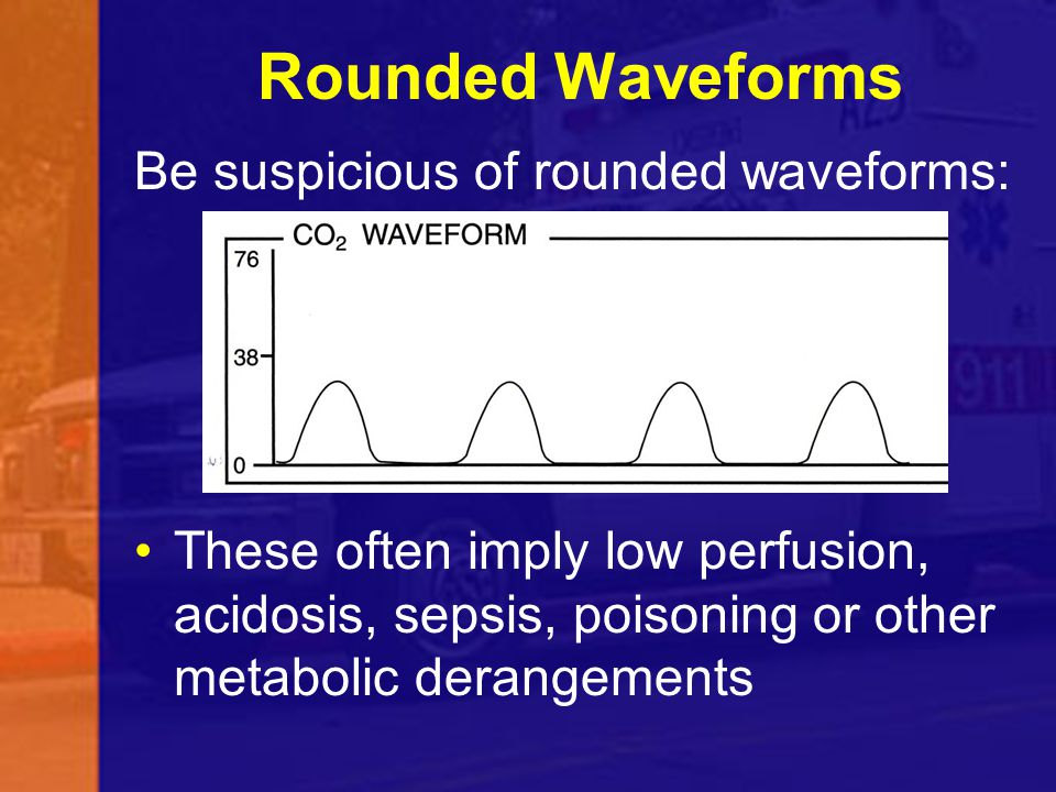 Rounded Waveforms Be suspicious of rounded waveforms: These often imply low perfusion, acidosis, sepsis, poisoning or other metabolic derangements