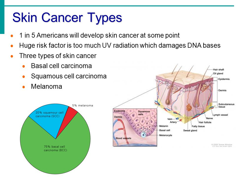 Skin Cancer Types  1 in 5 Americans will develop skin cancer at some point  Huge risk factor is too much UV radiation which damages DNA bases  Three types of skin cancer  Basal cell carcinoma  Squamous cell carcinoma  Melanoma