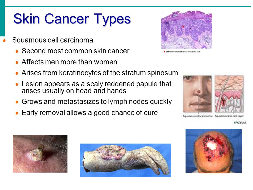 Skin Cancer Types  Squamous cell carcinoma  Second most common skin cancer  Affects men more than women  Arises from keratinocytes of the stratum