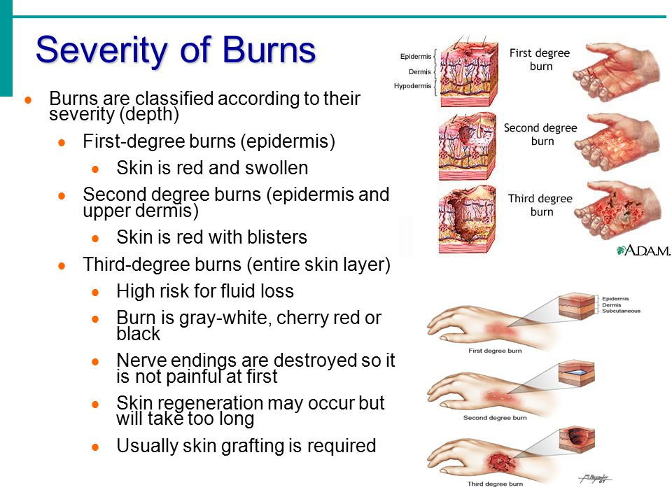 Severity of Burns  Burns are classified according to their severity (depth)  First-degree burns (epidermis)  Skin is red and swollen  Second degre