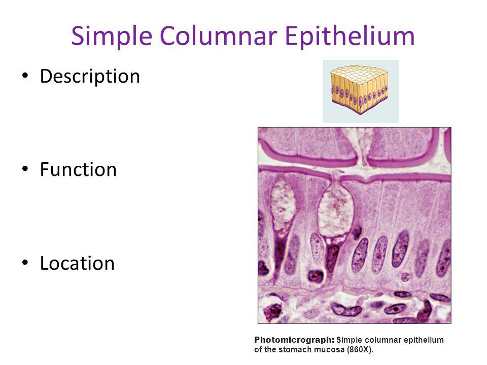 (c) Simple columnar epithelium Photomicrograph: Simple columnar epithelium of the stomach mucosa (860X). Simple Columnar Epithelium Description Functi