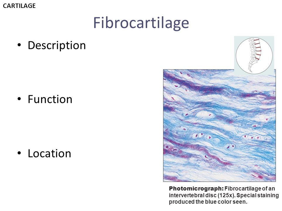 Fibrocartilage Description Function Location Photomicrograph: Fibrocartilage of an intervertebral disc (125x). Special staining produced the blue colo