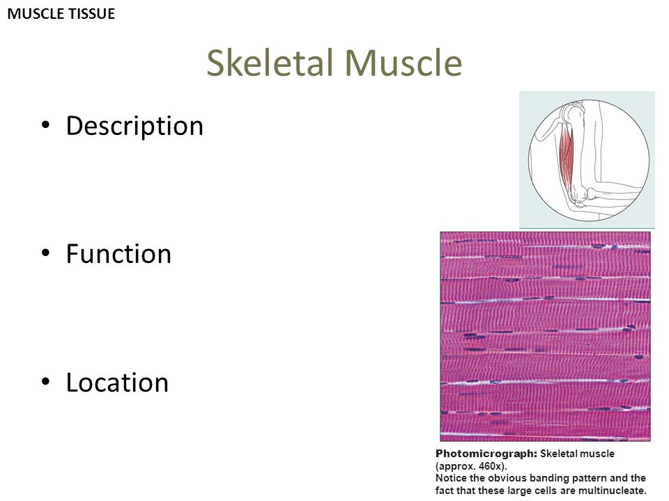 Skeletal Muscle Description Function Location Photomicrograph: Skeletal muscle (approx. 460x). Notice the obvious banding pattern and the fact that th