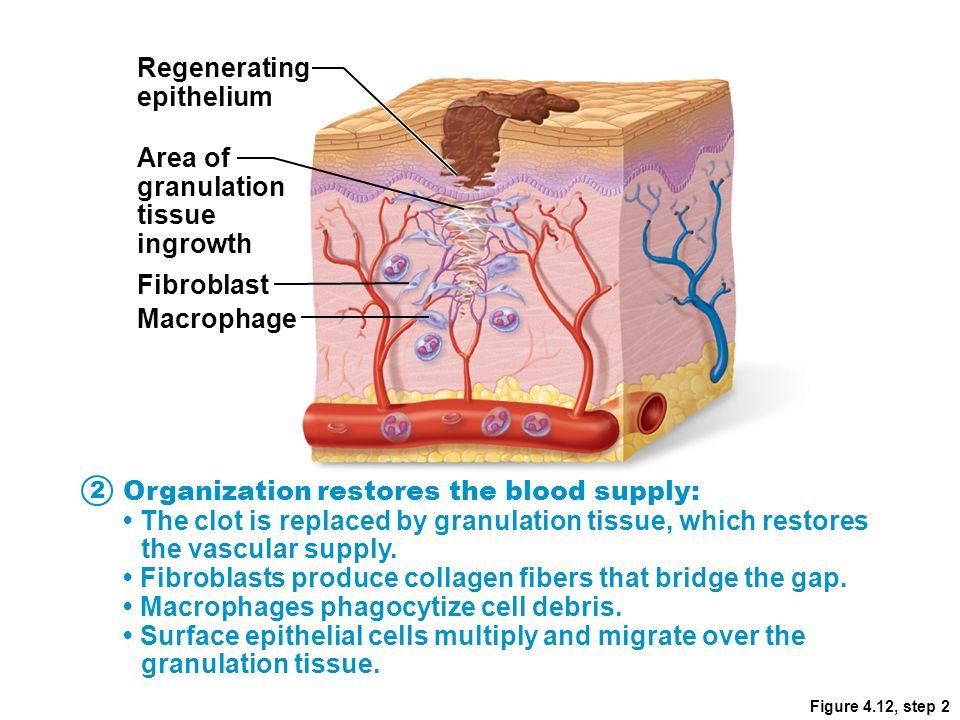 Figure 4.12, step 2 Regenerating epithelium Area of granulation tissue ingrowth Fibroblast Macrophage Organization restores the blood supply: The clot