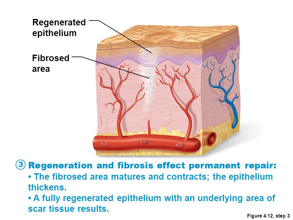 Figure 4.12, step 3 Regenerated epithelium Fibrosed area Regeneration and fibrosis effect permanent repair: The fibrosed area matures and contracts; t
