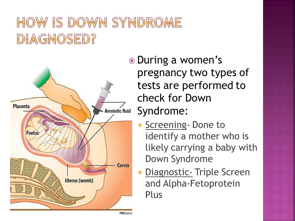  During a women's pregnancy two types of tests are performed to check for Down Syndrome:  Screening- Done to identify a mother who is likely carryin