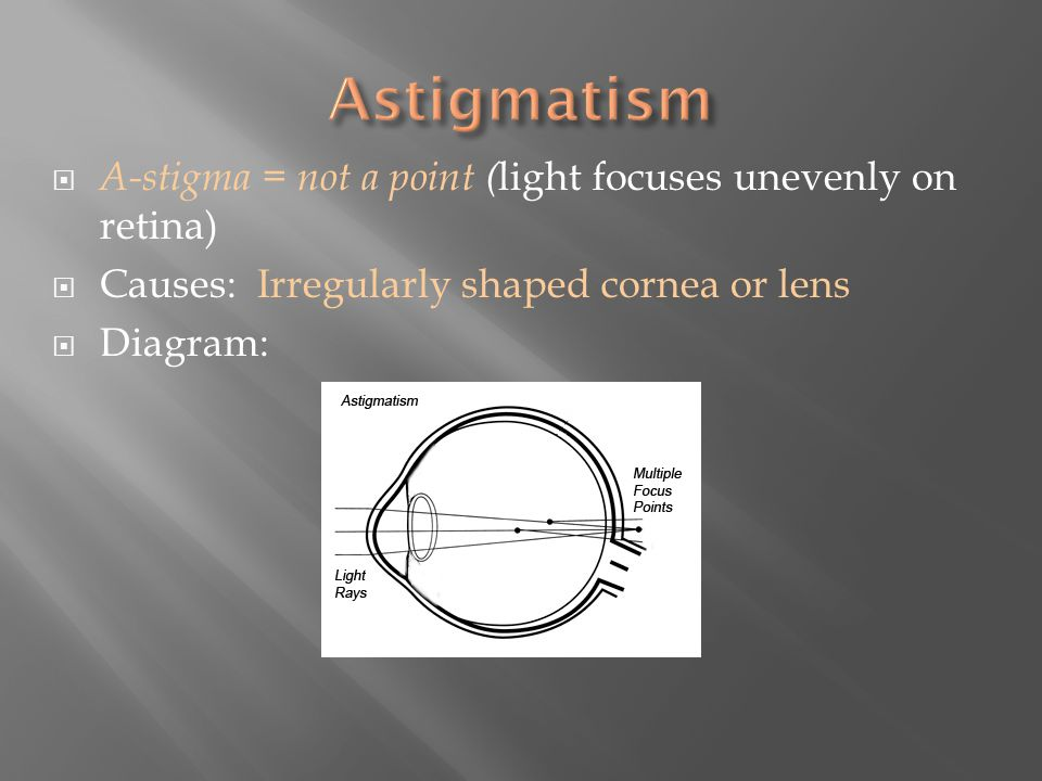  A-stigma = not a point ( light focuses unevenly on retina)  Causes: Irregularly shaped cornea or lens  Diagram: