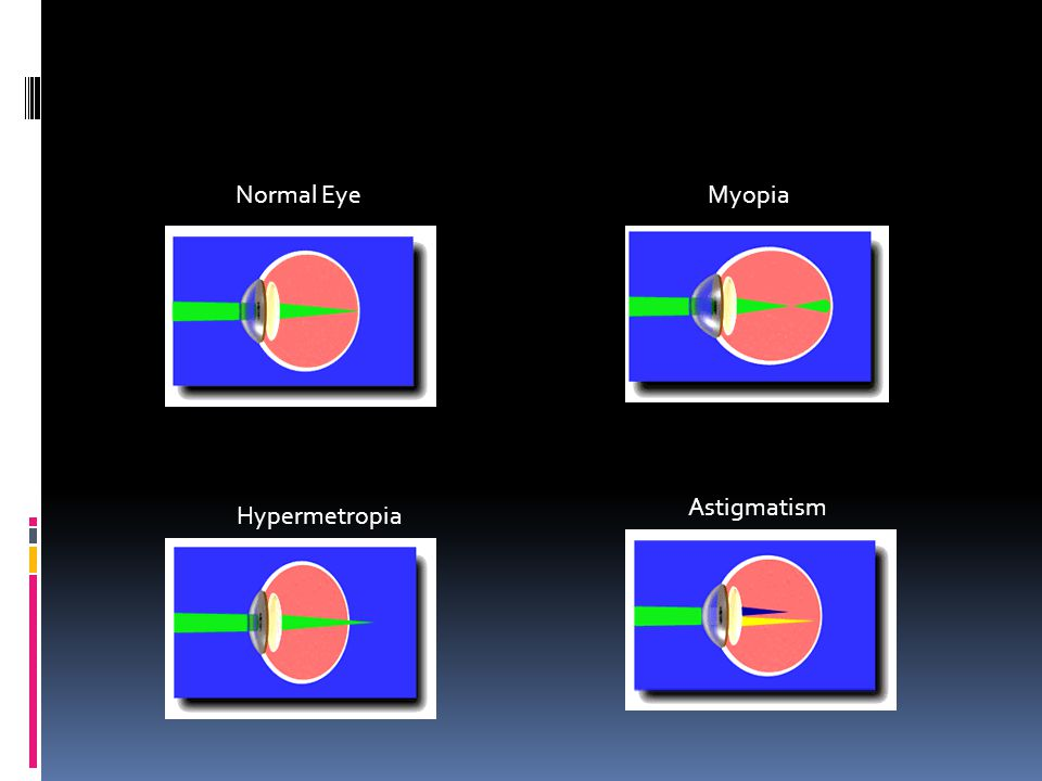 Normal EyeMyopia Hypermetropia Astigmatism