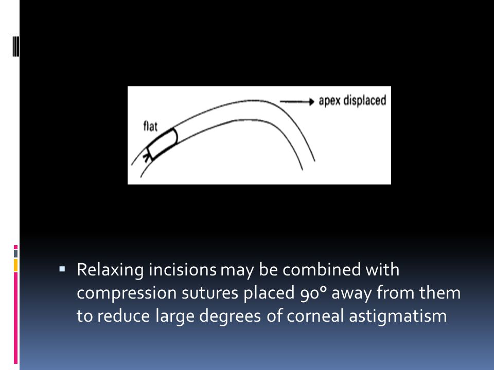 Relaxing incisions may be combined with compression sutures placed 90° away from them to reduce large degrees of corneal astigmatism