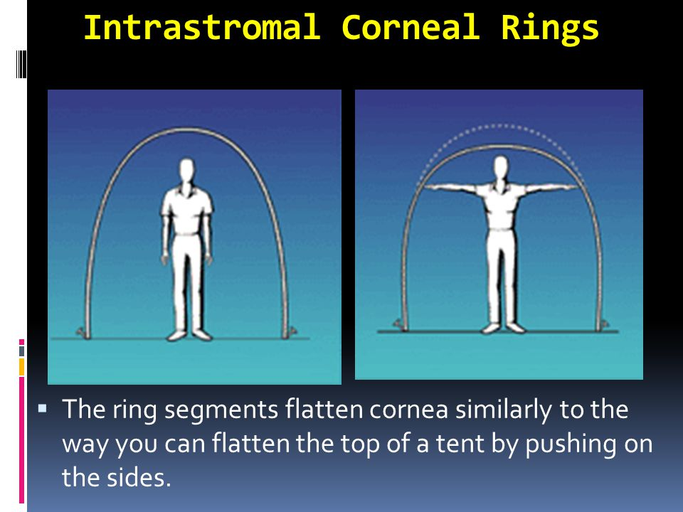 Intrastromal Corneal Rings  The ring segments flatten cornea similarly to the way you can flatten the top of a tent by pushing on the sides.