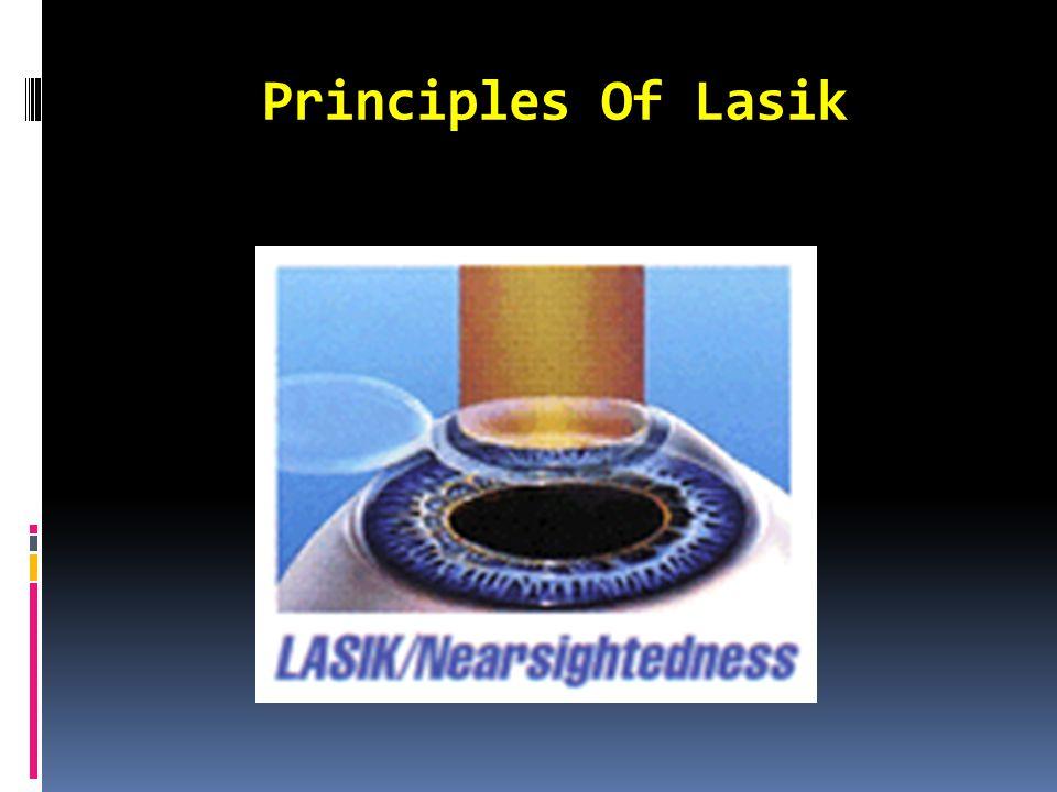 Principles Of Lasik